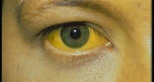 Name:  hepatitus-jaundice.jpg Views: 256 Size:  13.1 KB
